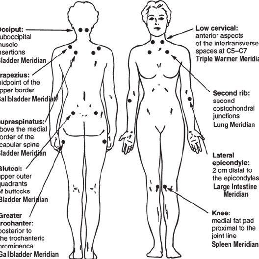 ACR fibromyalgia tender points