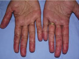 chilblains hands
