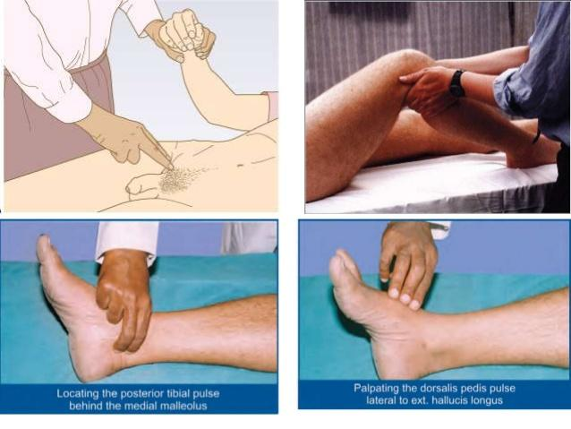 cause of radioradial and radiofemoral delay