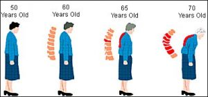 Women are More likely to develop Osteoporosis then Men 300x140