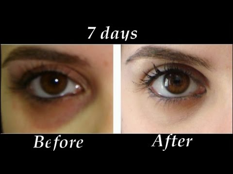 easy tips to remove dark circles