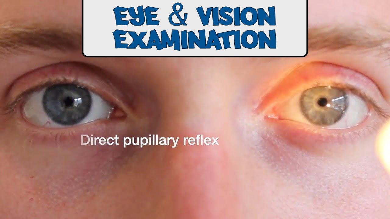 eye and vision examinationosce g