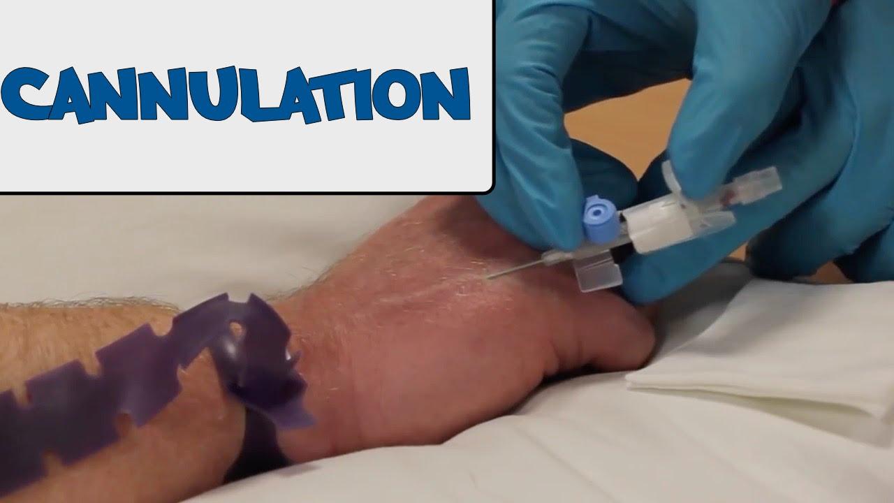 how to do cannulation osce gudie