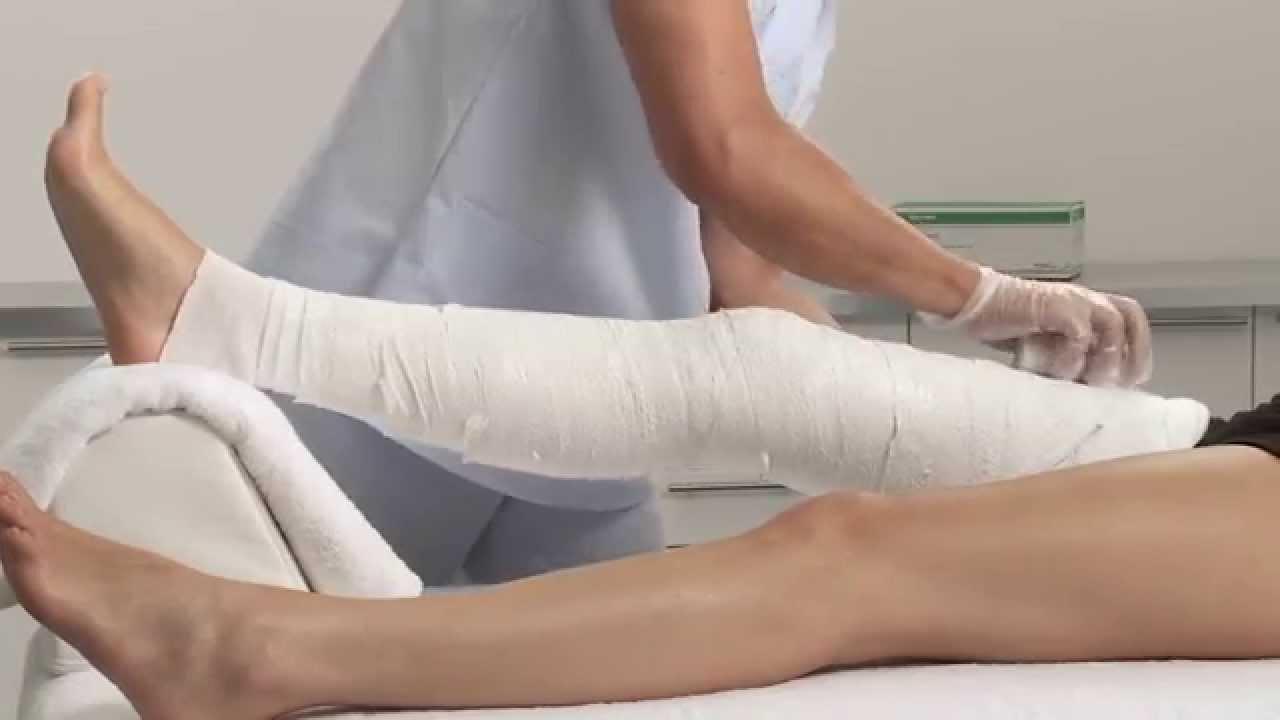 knee circular cast pop applicati