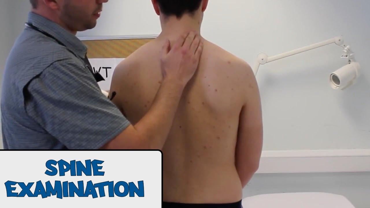 musculoskeletal examinationosce