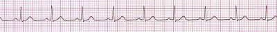 Easy Basics of ECG Learning |study notes