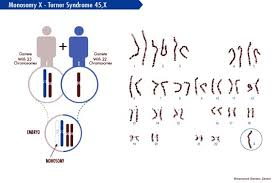 chromosomes realation to disease