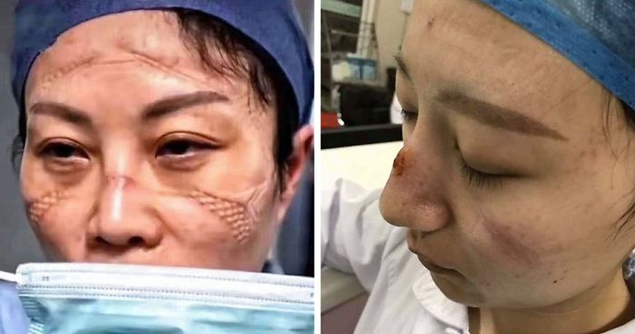 chinese nurses face masks corona virus