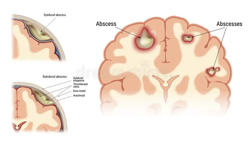 BRAINABSCESS PHYSIOTHERAPY