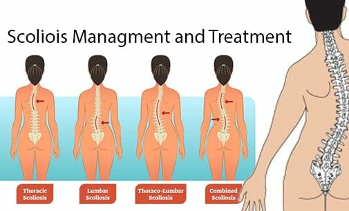Safe Scoliosis Management and Treatment Approach
