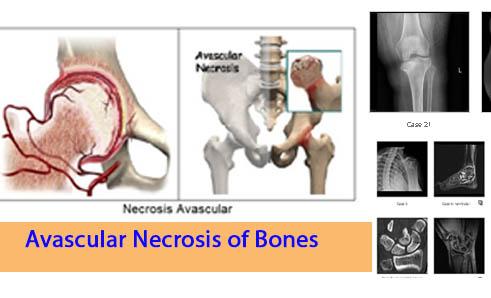 Avascular Necrosis of Bones Ortho Study Notes