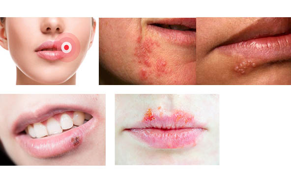 Cold sore symptoms and cold sore stages