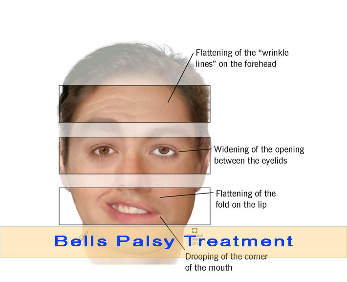 Effective Management And treatment of bells palsy
